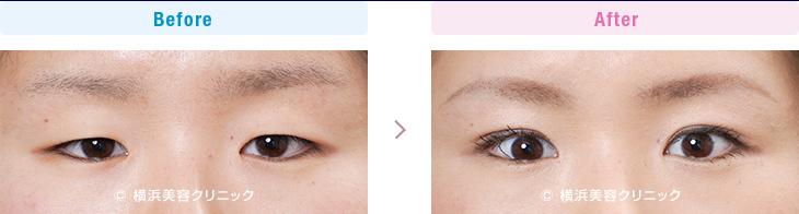 【20代女性】 一重でも魅力的な目が、埋没法でさらに魅力的な二重まぶたに【横浜美容クリニック】