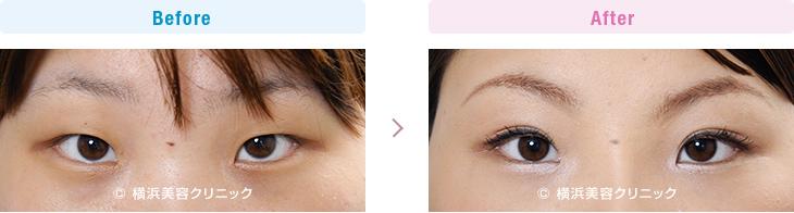 【20代女性】目と目の間が離れている場合、目頭切開だけでなく、隆鼻術も効果的【横浜美容クリニック】
