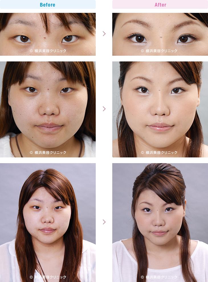 目の施術(二重・涙袋など) 【20代女性】 目と目の間が離れている場合、目頭切開だけでなく、隆鼻術も効果的【横浜美容クリニック】