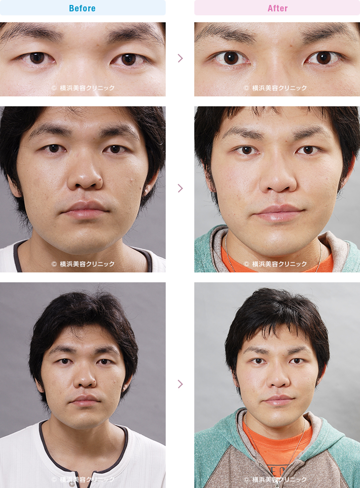 男性美容 二重まぶたにして、鼻も高くしたい、という希望の方です。(二重 埋没法+隆鼻術)【横浜美容クリニック】
