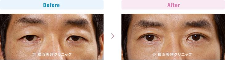 部分切開法により外側の脂肪の一部を取り除き、スッキリした目元に変えました。(二重 部分切開法)