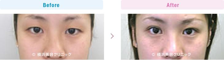 【20代女性】 眠そうな重たい一重まぶたも、部分切開法でハッキリとした目の印象に改善【横浜美容クリニック】