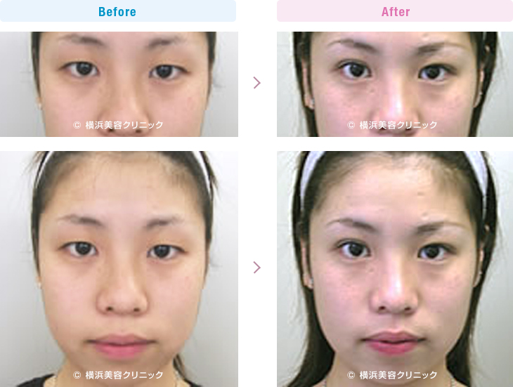 目の施術(二重・涙袋など) 【20代女性】 眠そうな重たい一重まぶたも、部分切開法でハッキリとした目の印象に改善【横浜美容クリニック】