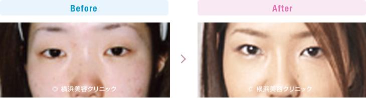 【20代女性】 腫れぼったい軽度の眼瞼下垂のマブタにも、脂肪を取り除く部分切開法は効果的【横浜美容クリニック】