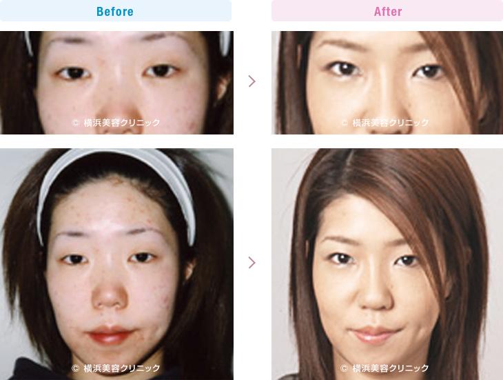 目の施術(二重・涙袋など) 【20代女性】 腫れぼったい軽度の眼瞼下垂のマブタにも、脂肪を取り除く部分切開法は効果的【横浜美容クリニック】