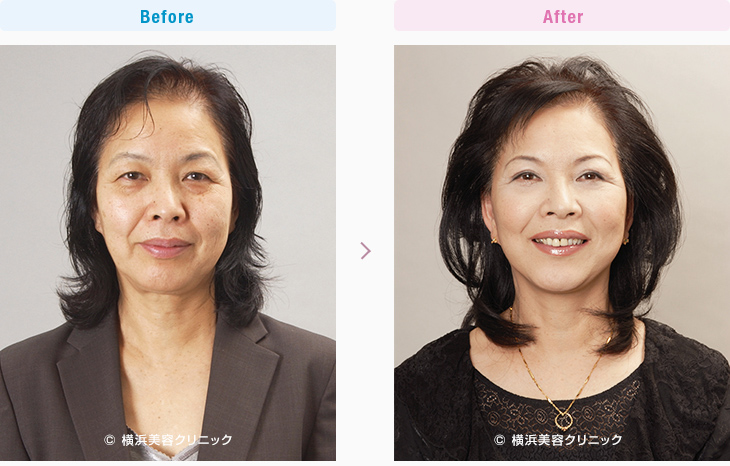 【60代女性】頬の弛みによるだぶつきが多い場合は、同時に頬の脂肪吸引を行うと効果的