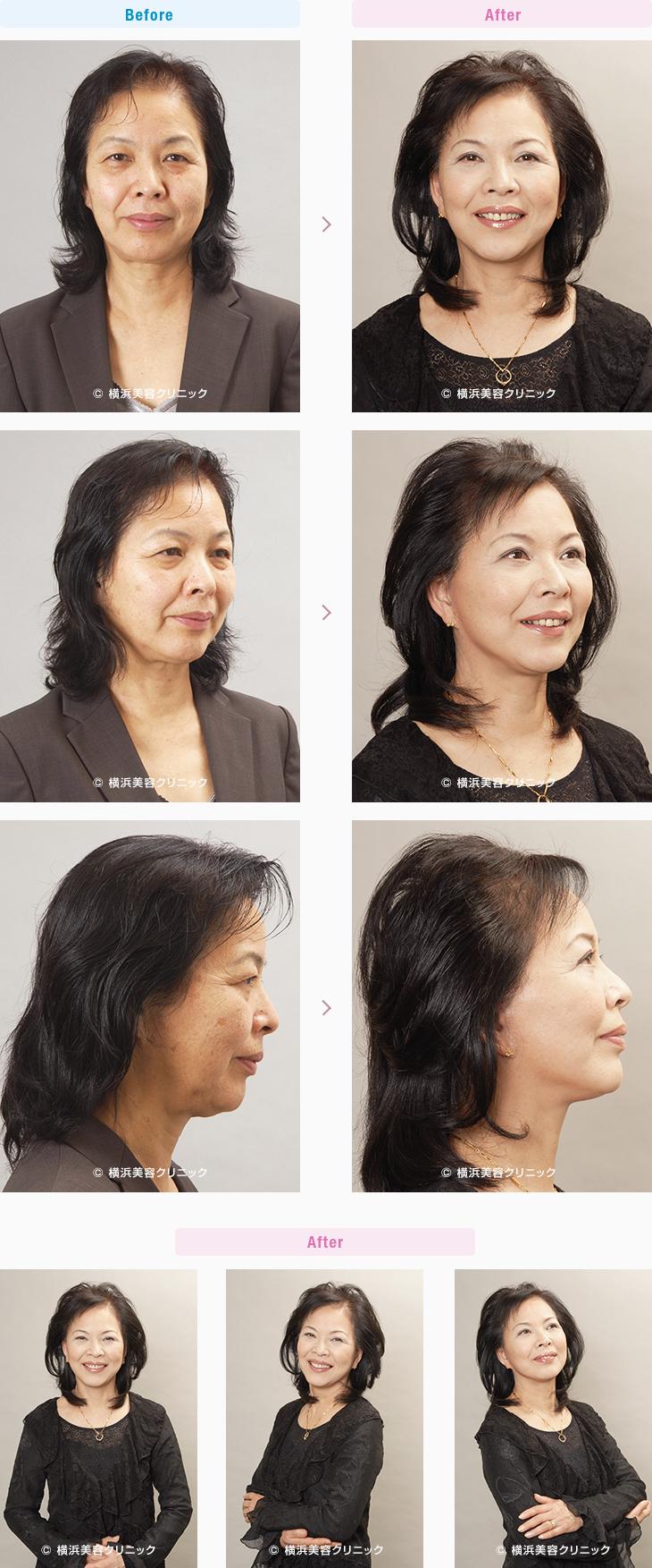 フェイスリフト 【60代女性】頬の弛みのだぶつきが多い場合は、頬の脂肪吸引を同時に行うと効果的【横浜美容クリニック】