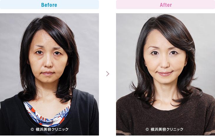 【30代女性】年齢が若くても弛みが多い方には、ミニリフト(ミニ切開リフト)よりもフェイスリフト(切開リフト)が効果的【横浜美容クリニック】