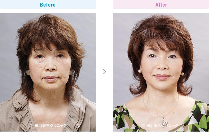 【60代女性】タルミによる四角いフェイスラインを小顔効果があるフェイスリフトでスッキリと改善。【横浜美容クリニック】