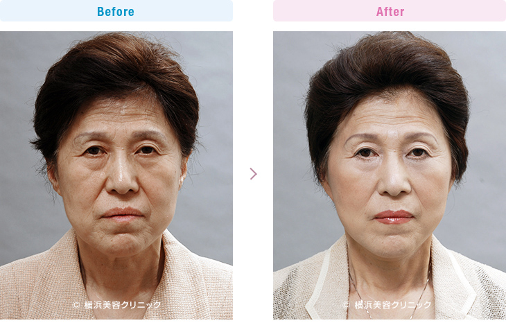 【60代女性】目の下のゴルゴラインや頬のお肉のダブつきにはフェイスリフト(切開リフト)が効果的【横浜美容クリニック】