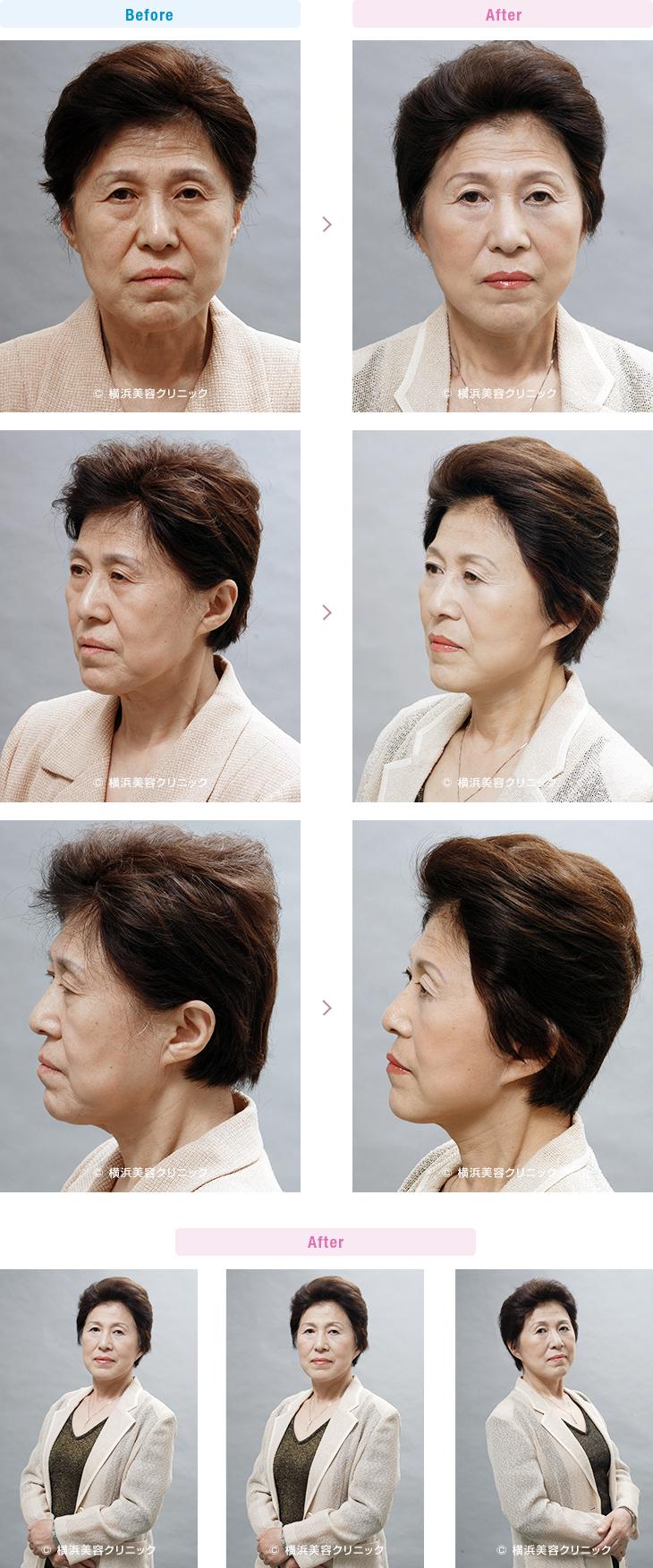 フェイスリフト 【60代女性】目の下のゴルゴラインや頬のお肉のダブつきにはフェイスリフトが効果的【横浜美容クリニック】