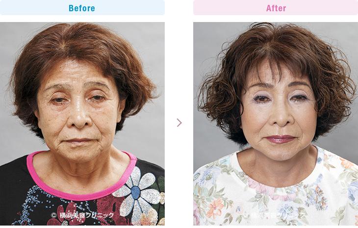 【70代女性】フェイスリフト(切開リフト)は頬だけでなく、首の弛みに対しても非常に効果的【横浜美容クリニック】