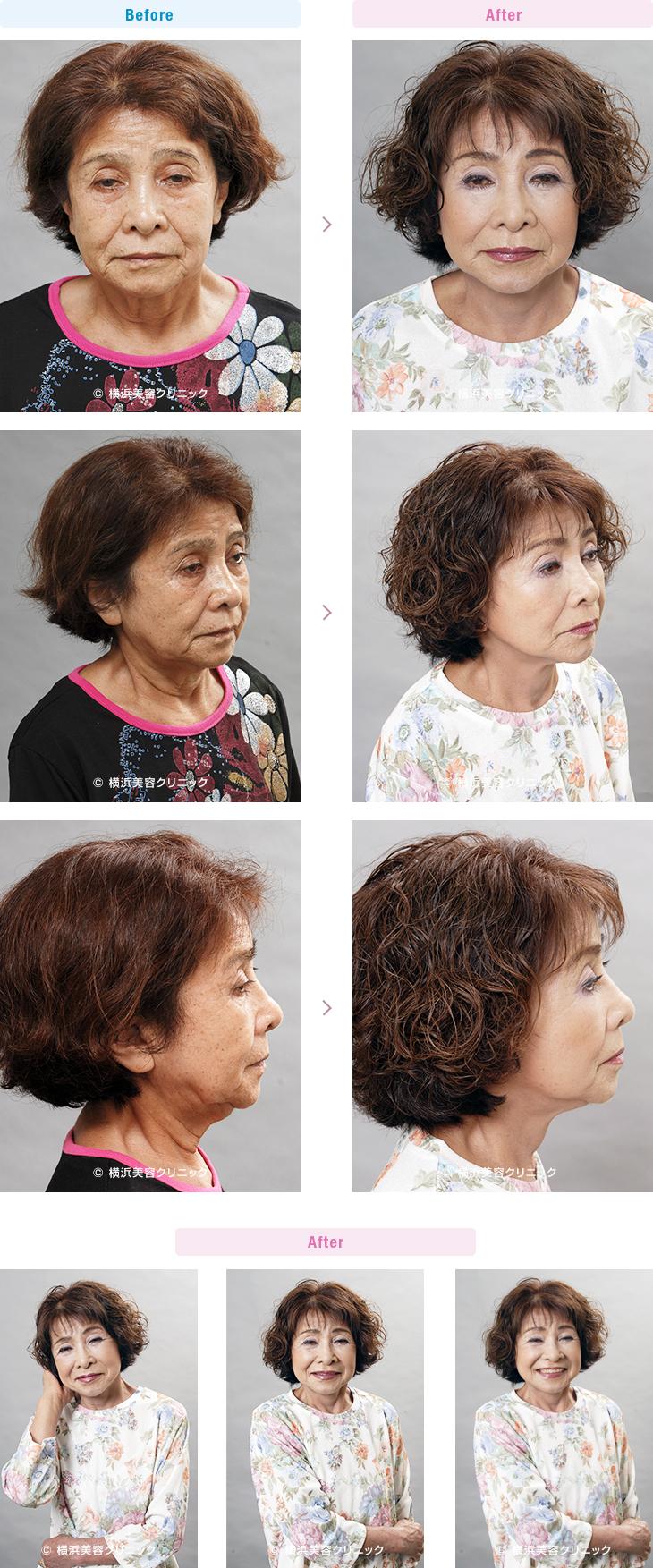 フェイスリフト 【70代女性】フェイスリフト(切開リフト)は頬だけでなく、首の弛みに対しても非常に効果的【横浜美容クリニック】