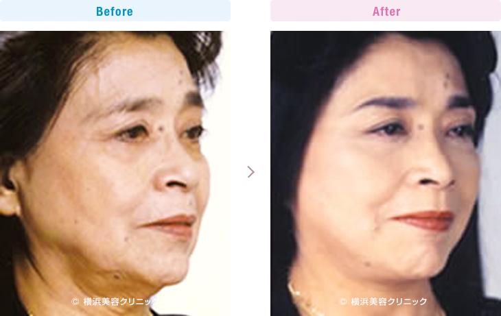 【60代女性】頬のタルミが進行するとフェイスラインが崩れてきます。フェイスラインをスッキリさせるにはフェイスリフト(切開リフト)が最も効果的【横浜美容クリニック】