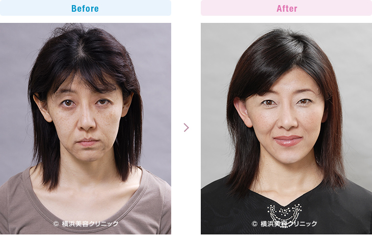 【40代女性】急激に痩せたことが原因のタルミに対して、ミニリフト(ミニ切開リフト)は効果的です。【横浜美容クリニック】