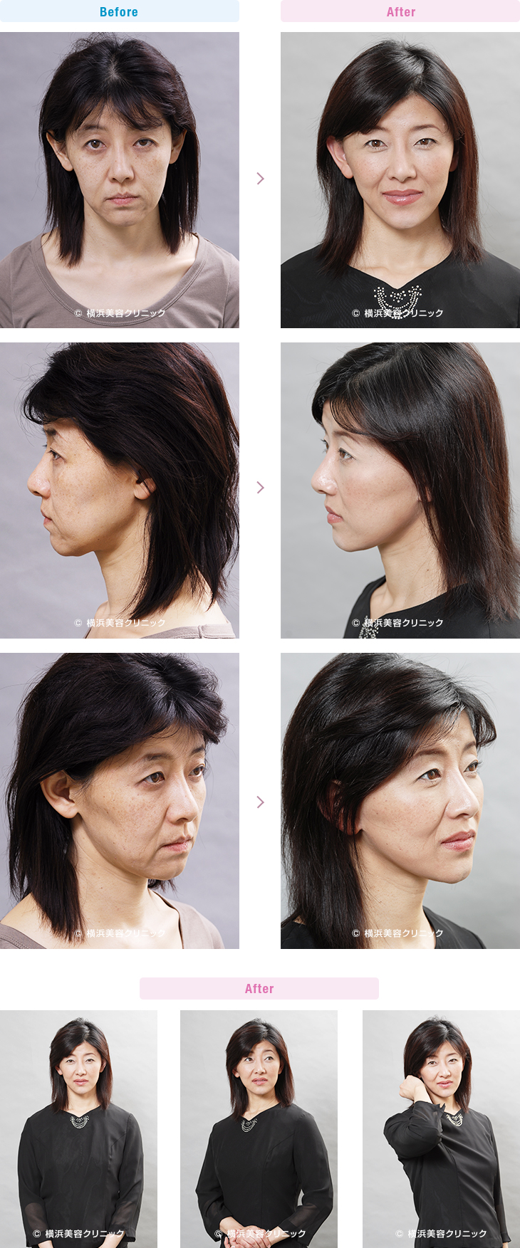 【40代女性】急激に痩せたために弛んでしまった頬に対して、ミニリフト(ミニ切開リフト)は非常に効果があります。(ミニリフトの症例)【横浜美容クリニック】