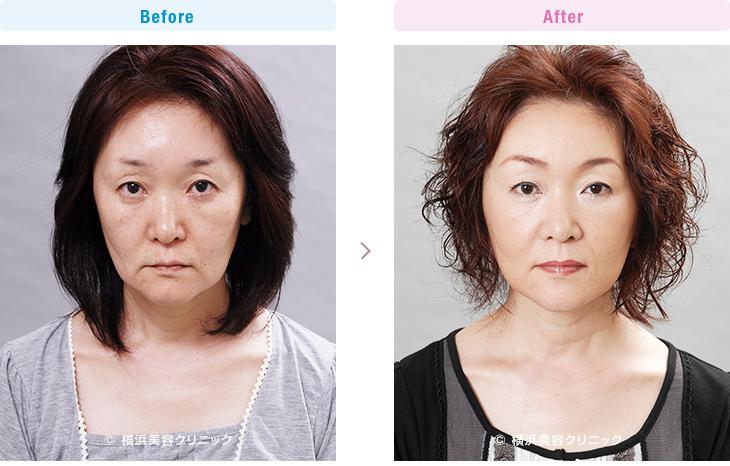 【40代女性】頬のタルミが進行しフェイスラインが崩れた場合でも、ミニリフトは効果的です。