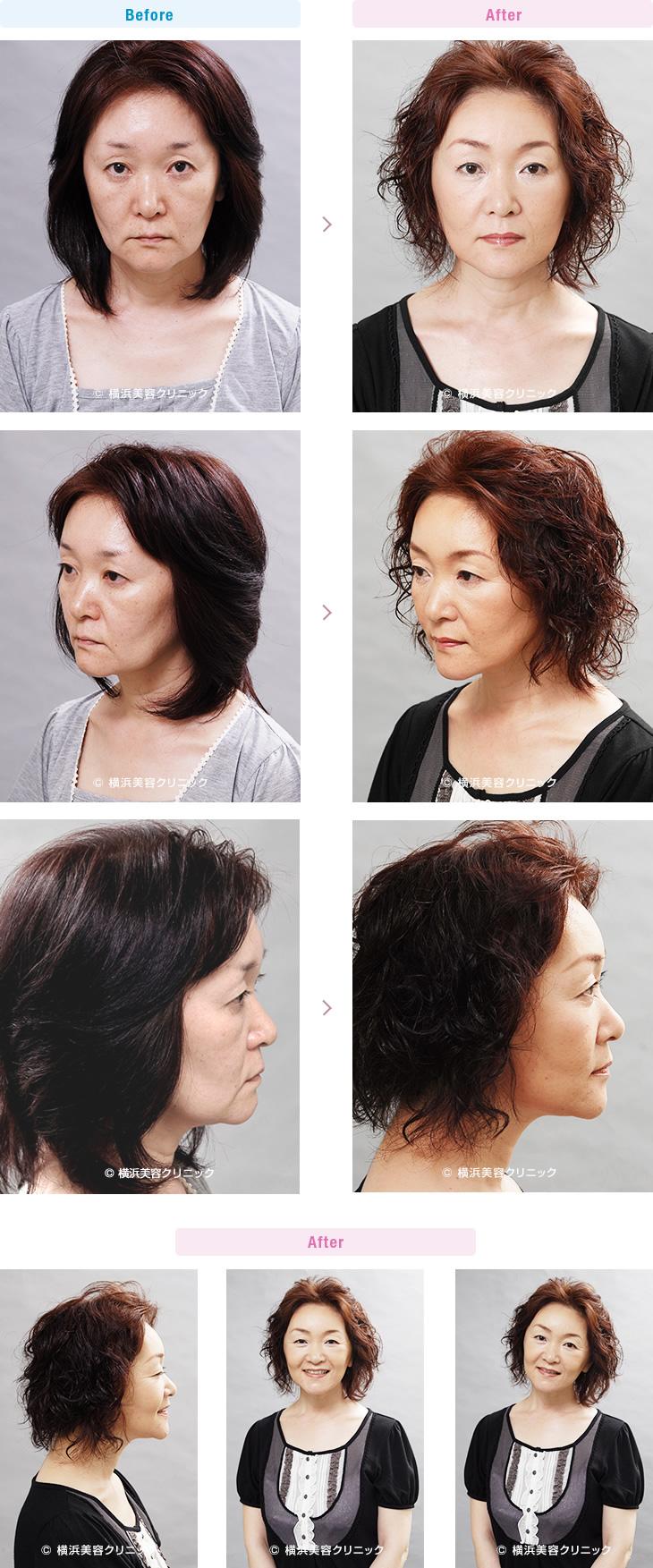 フェイスリフト 【40代女性】頬のタルミが進行しフェイスラインが崩れた場合でも、ミニリフト(ミニ切開リフト)は効果的です。(ミニリフトの症例)【横浜美容クリニック】