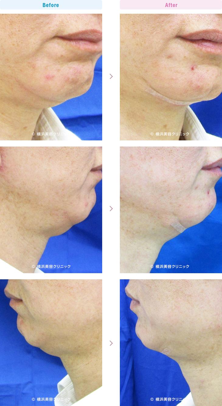 男性美容 あご下部分のダブつき、二重アゴの方に適応になる手術です。(ネックリフト(二重あごリフト))【横浜美容クリニック】