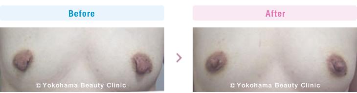 繰り返した授乳のため、乳首が垂れ下がってしまったので、改善したい、という希望の方です。【横浜美容クリニック】