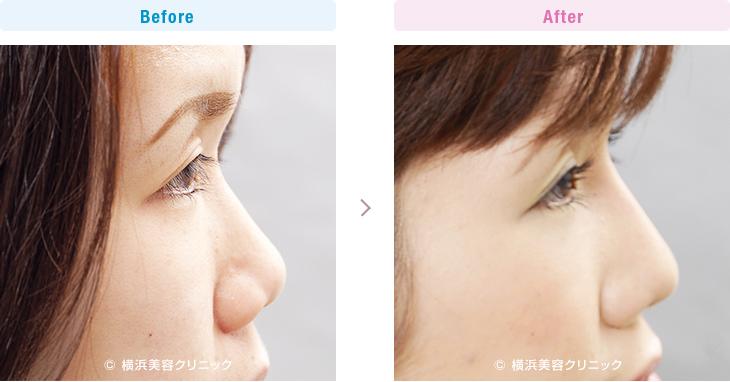 【20代女性】隆鼻術と小鼻縮小術の複合効果で、鼻筋が通った細くてキレイな鼻になりました