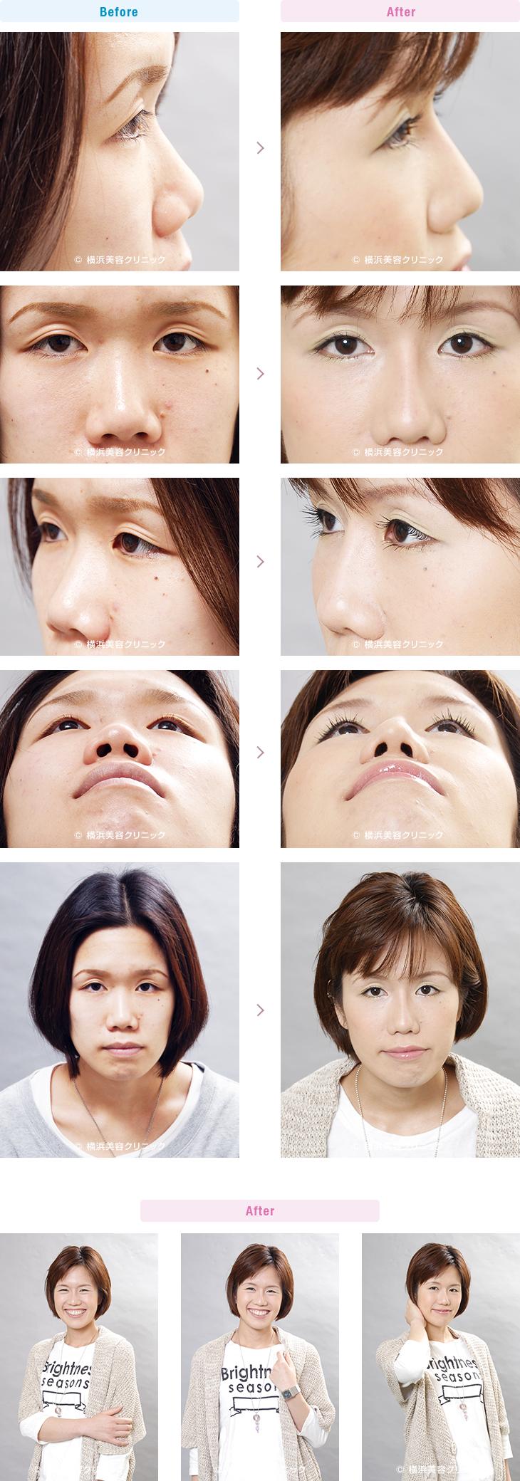 鼻(隆鼻術・整鼻術) 【20代女性】隆鼻術と小鼻縮小術の複合効果で、鼻筋が通った細くてキレイな鼻になりました。【横浜美容クリニック】