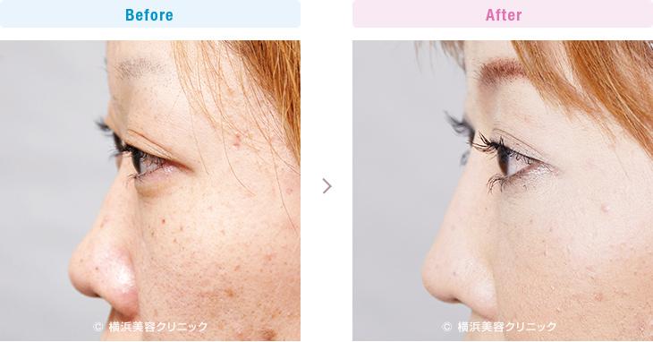 【20代女性】鼻先の丸みが気になる方には、鼻尖縮小術が効果的