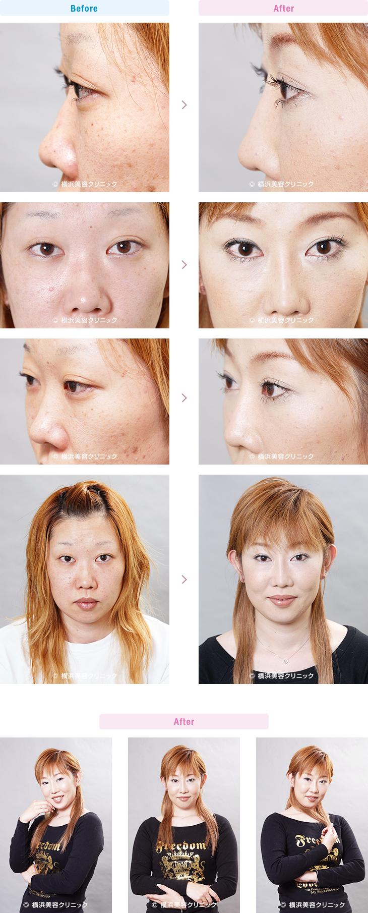 【20代女性】鼻先の丸みが気になる方には、鼻尖縮小術が効果的【横浜美容クリニック】