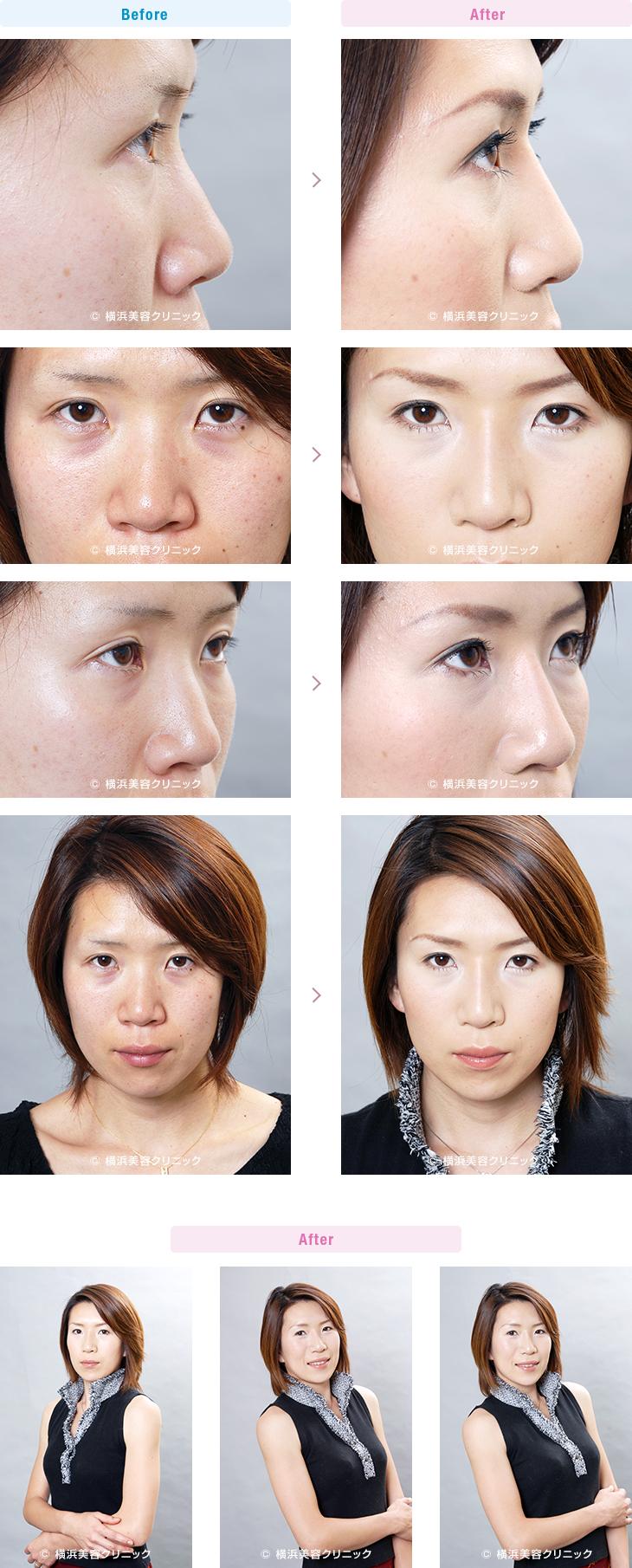 鼻(隆鼻術・整鼻術) 【20代女性】鼻筋を通して鼻の穴も目立たなくしたい場合は、隆鼻術+小鼻縮小の複合手術が効果的【横浜美容クリニック】