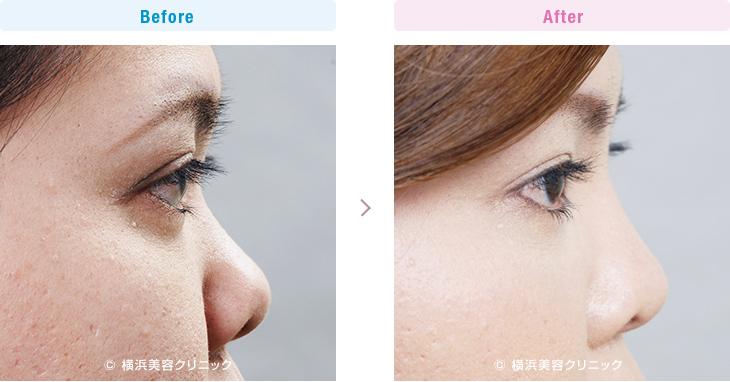 【20代女性】団子鼻と鼻の穴が気になる場合、鼻尖縮小と鼻中隔延長術が効果的