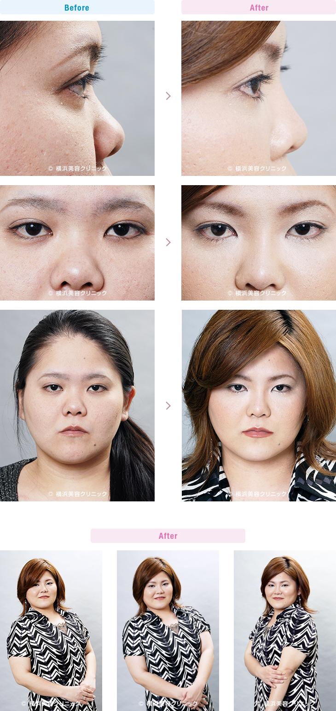 鼻(隆鼻術・整鼻術) 【20代女性】団子鼻と鼻の穴が気になるばあい、鼻尖縮小術と鼻中隔延長術が効果的【横浜美容クリニック】