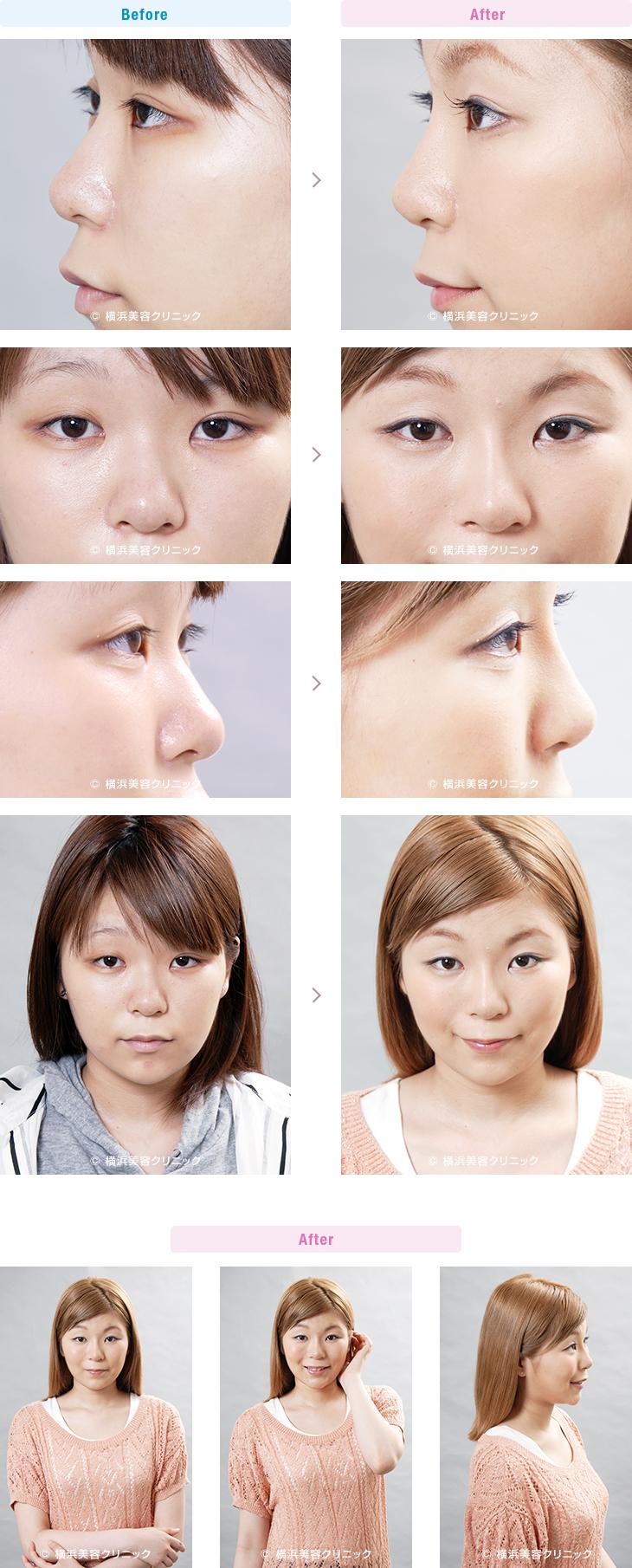 鼻(隆鼻術・整鼻術) 【20代女性】鼻全体を高くしたい場合はL型プロテーゼによる隆鼻術が最も効果的【横浜美容クリニック】