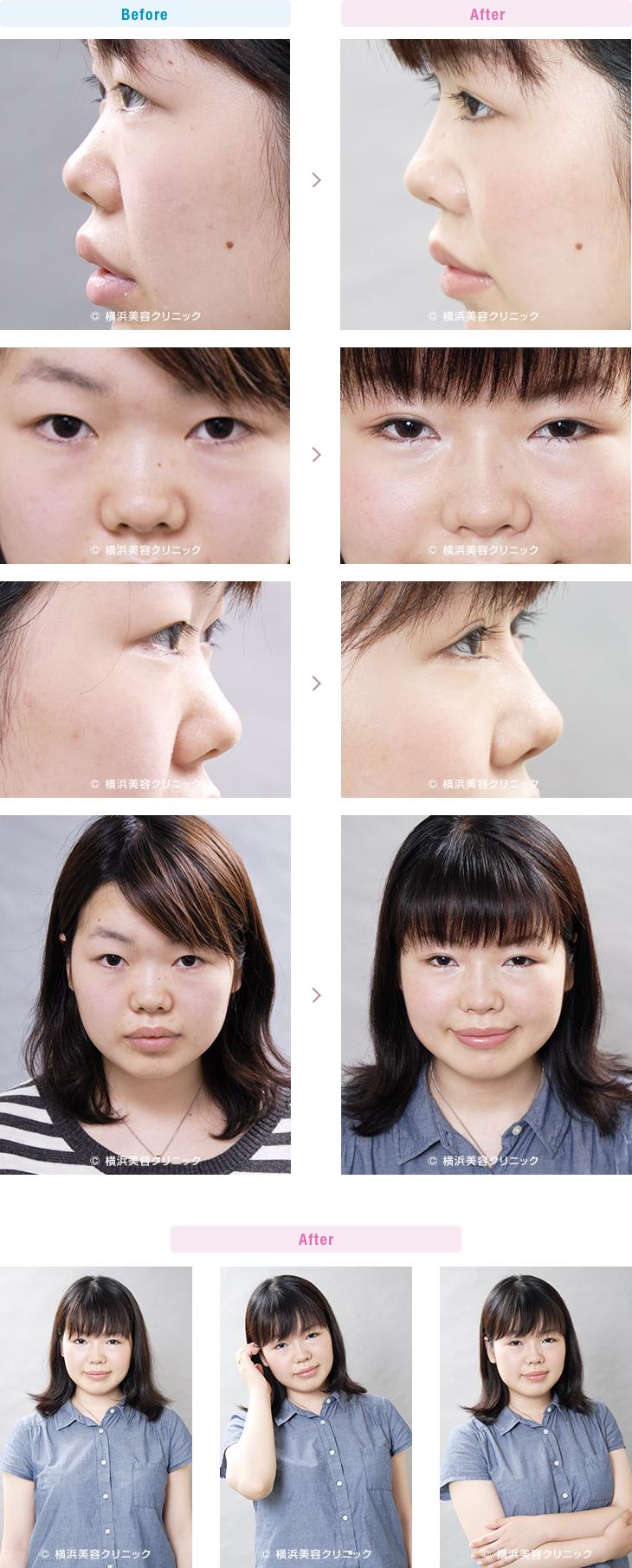 鼻(隆鼻術・整鼻術) 【20代女性】控えめに鼻筋を通したい場合はI型プロテーゼによる隆鼻術で鼻根部を高くします。【横浜美容クリニック】