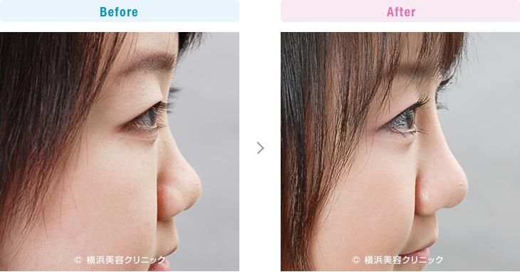 【20代女性】鼻を細くして鼻筋を通すには、隆鼻術+鼻尖縮小術が有効です。