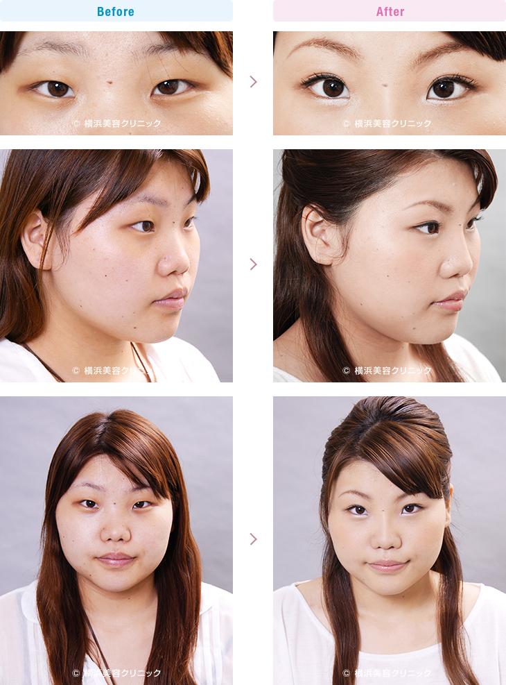 鼻(隆鼻術・整鼻術) 【20代女性】鼻全体を細く高くするにはL型プロテーゼによる隆鼻術が効果的【横浜美容クリニック】
