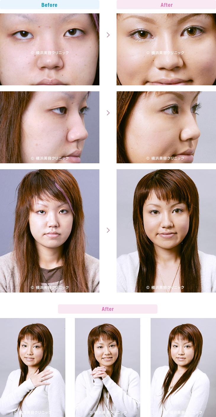 鼻(隆鼻術・整鼻術) 【20代女性】目と目の間が離れてい見える場合、目頭切開だけでなく隆鼻術も有効です。【横浜美容クリニック】