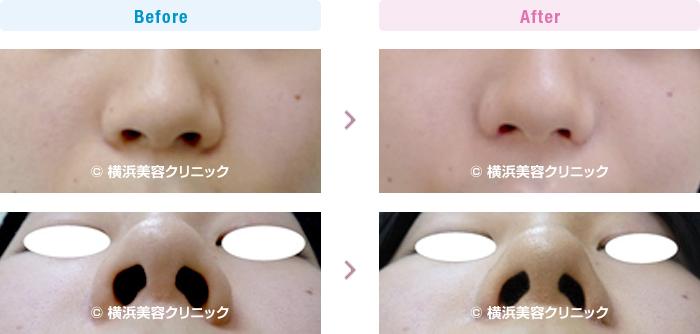 鼻(隆鼻術・整鼻術) 【20代男性】鼻の穴を目立たなくしたい場合は小鼻縮小術が有効です。【横浜美容クリニック】