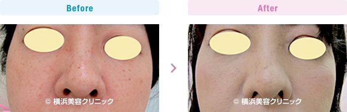 鼻(隆鼻術・整鼻術) 【40代女性】正面から見ても鼻の穴を目立たなくするには、小鼻縮小(鼻翼縮小)が有効です。【横浜美容クリニック】