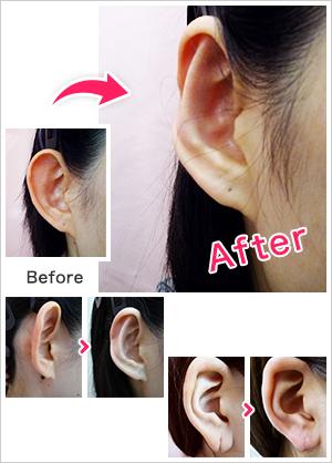 耳の美容外科・美容整形(立ち耳・耳垂裂)【横浜美容クリニック】