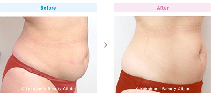 脂肪溶解注射/メソセラピー (ミケランジェロ) お腹上下に合計4本(40cc)、2週間間隔で5回おこないました。(施術例02)1【横浜美容クリニック】