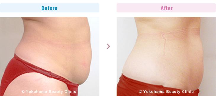 脂肪溶解注射/メソセラピー (ミケランジェロ) お腹上下に合計4本(40cc)、2週間間隔で5回おこないました。(施術例02)2【横浜美容クリニック】
