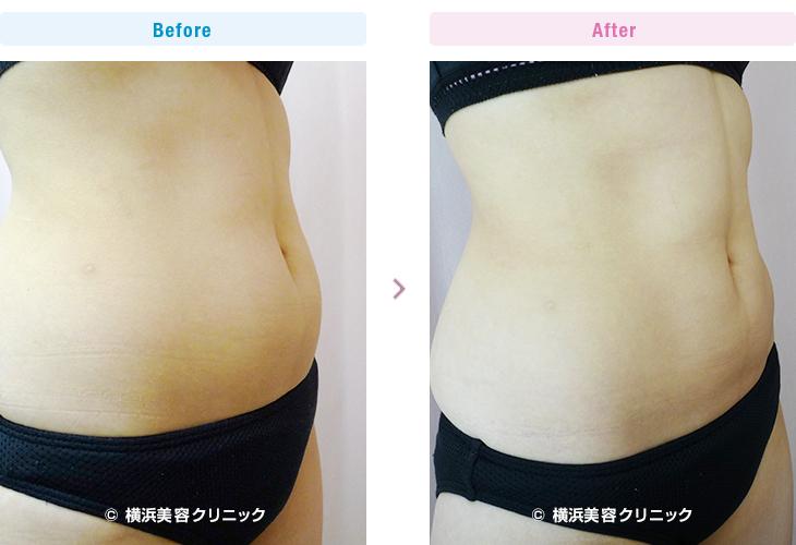 脂肪溶解注射/メソセラピー (ミケランジェロ) お腹上下に4本(40cc)、2週間間隔で5回行いました。(施術例06)1【横浜美容クリニック】