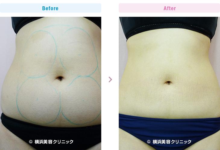 脂肪溶解注射/メソセラピー (ミケランジェロ) お腹上下に4本(40cc)、2週間間隔で5回行いました。(施術例06)3【横浜美容クリニック】