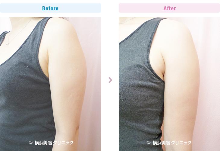 脂肪溶解注射/メソセラピー (ミケランジェロ) 二の腕上部に2本(20cc)、2週間間隔で3回行いました。(施術例10)2【横浜美容クリニック】