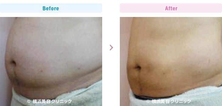 お腹上下と腰に6本(60cc)、2週間間隔で5回行いました。(脂肪溶解注射)【横浜美容クリニック】