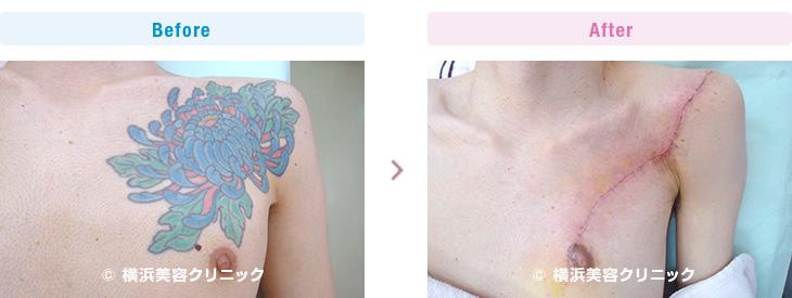 刺青・タトゥーの除去(切除法)3回の手術で全て取り除きました。(男性・胸部分)【横浜美容クリニック】