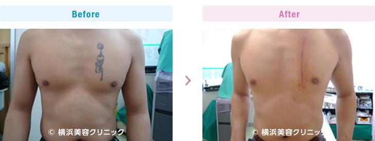 1回の手術で取り除きました。(男性・胸部分)