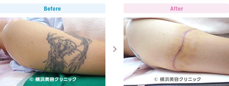 刺青・タトゥーの除去(切除法)二の腕、ぐるっと1周ある刺青です。(腕部分)【横浜美容クリニック】