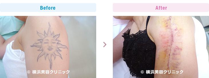 刺青・タトゥーの除去(切除法)二の腕の縦軸切除例です。(腕部分)【横浜美容クリニック】