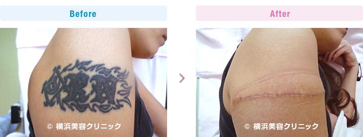 刺青・タトゥーの除去(切除法)横軸切開での手術なので、皮膚の伸展性は悪く、2回の手術で取り除きました。(腕部分)【横浜美容クリニック】